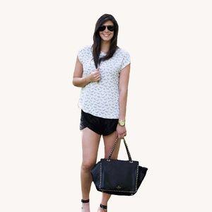 H&M Tops - Zebra Shirt